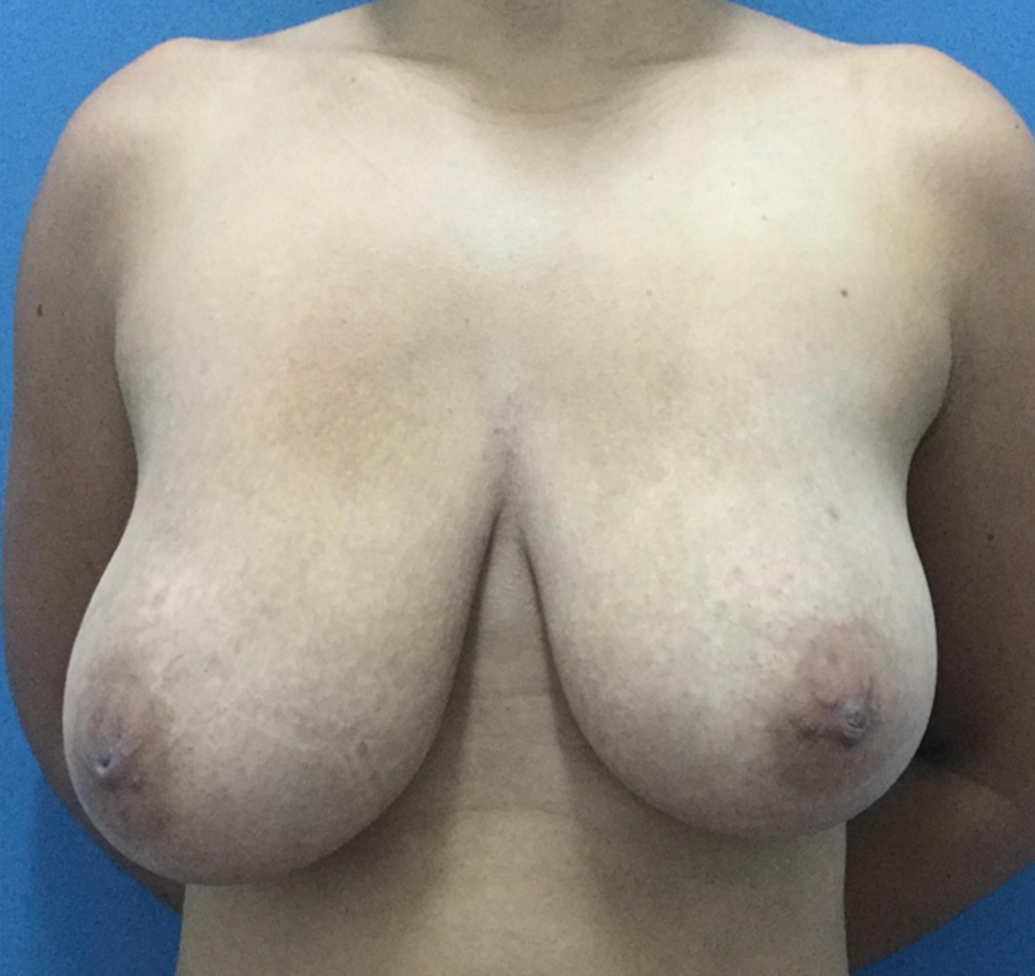 reduccion-con-implante