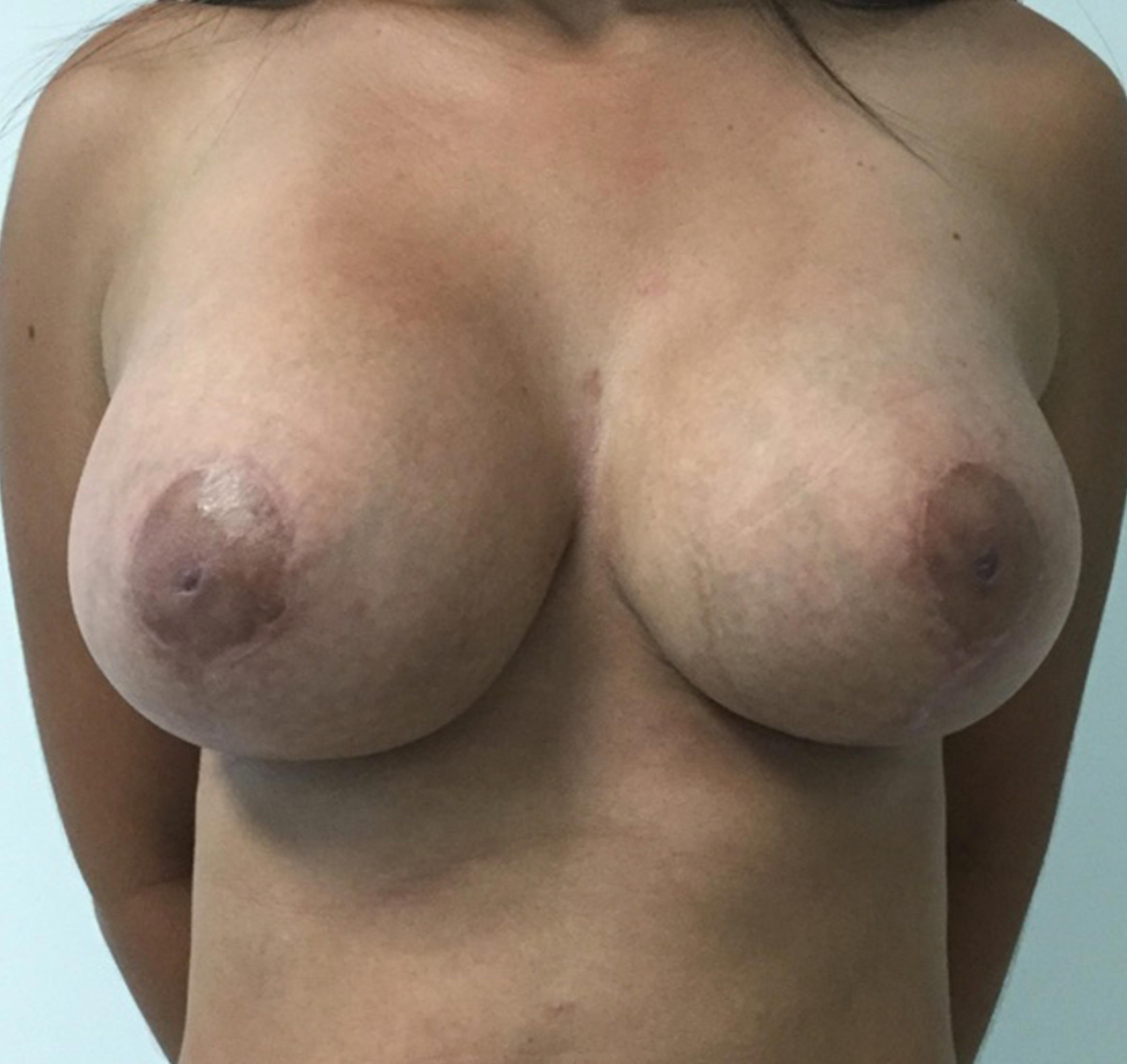 reduccion-con-implante2