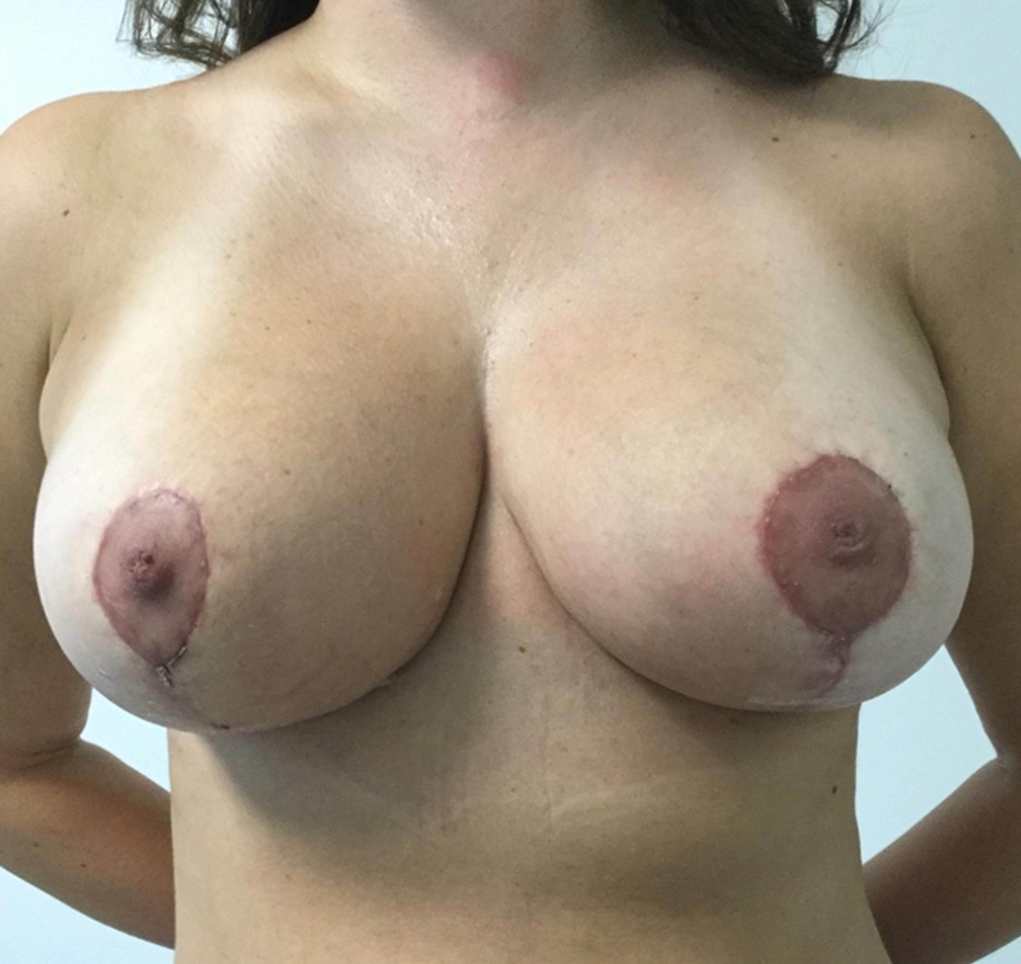sin-implante2